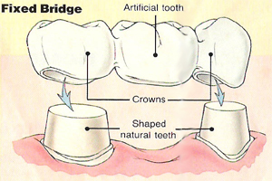 Replacement of missing teeth with fixed prosthesis origin and fate of carbon dioxide in photosynthesis